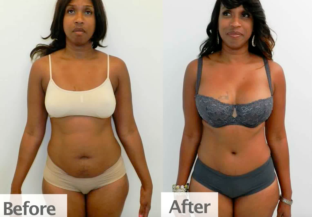 Before & After: Mommy Makeover